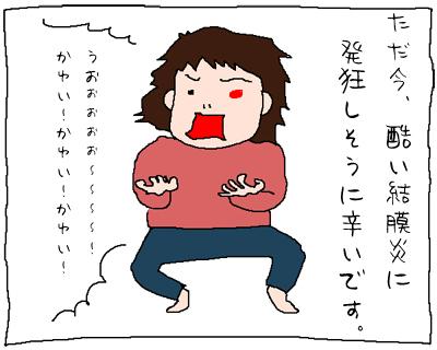 目が痒いー!!!