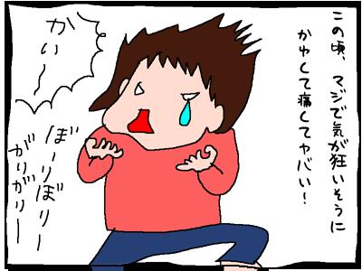 かゆいよーーー!!!